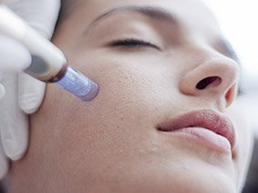 Micro Needling Course at Bronwyn Conroy Beauty School